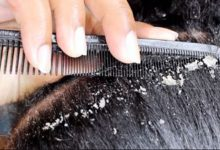 Want to Get Rid Off Dandruff Here's Are Home Remedies For It